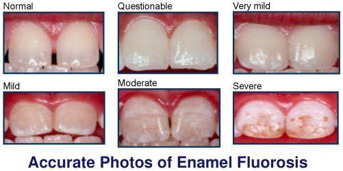 accurate-photos-of-fluorosi[1].jpg