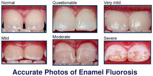 accurate-photos-of-fluorosi[1].jpg